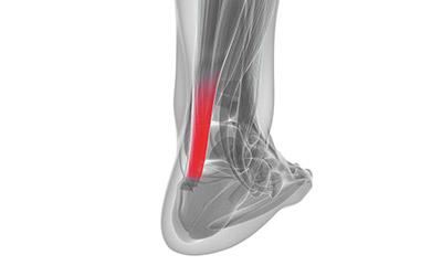 Achillessehnenschmerzen