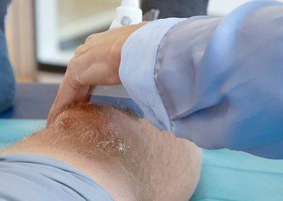Ultraschall am Knie